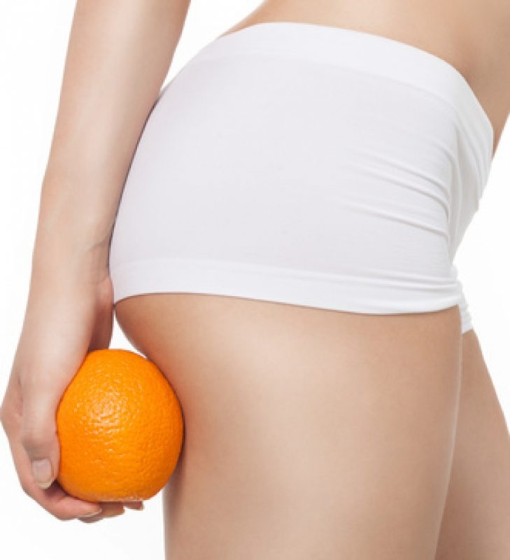 Cellulite – The Cause