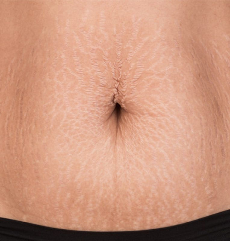 Solution for stretch Marks?