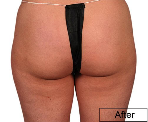 After using Lipo