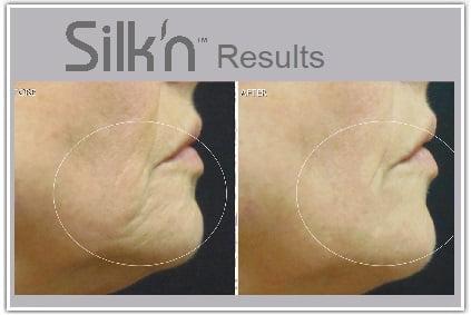 silkn-results